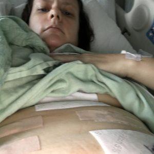 Dianne Hadzic (Gastric Stimulator Surgery)